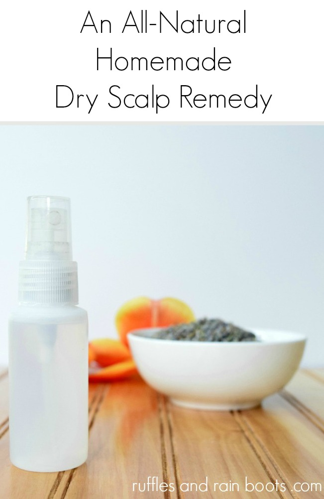 All Natural Dry Scalp Remedy